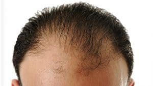 Androgene Alopezie